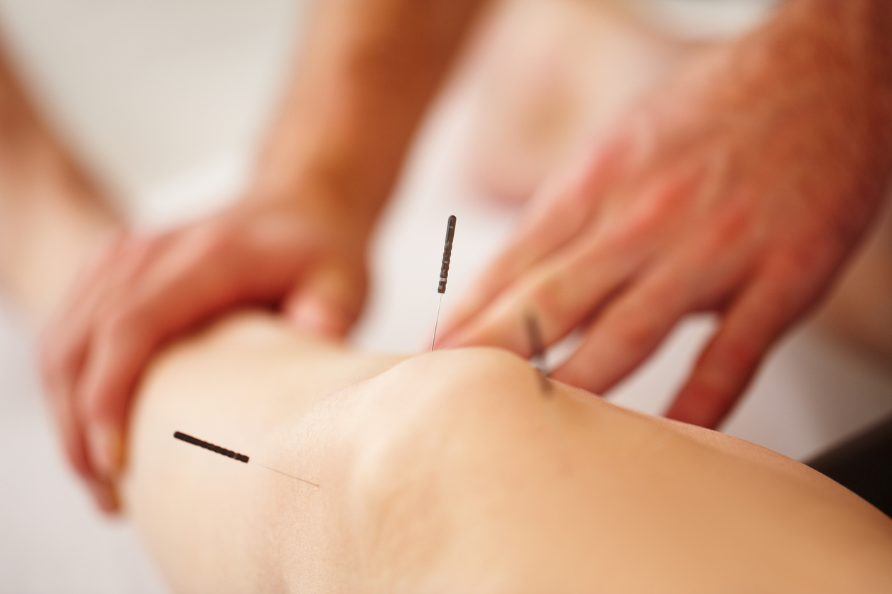Medical Acupuncture Cornwall